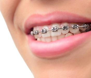 parkview dental centre brooks family dentist 403 362 3752